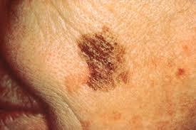Bőrrák tünetei
