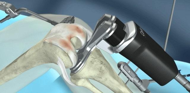 robot asszisztált térdműtét